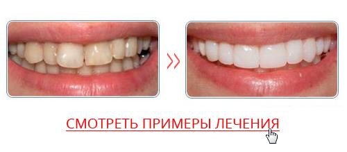 Как отличить настоящие зубы от виниров